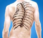 deformidades de columna