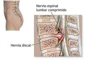 hernia discal dr iohan fernandez