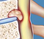 tumores de columna